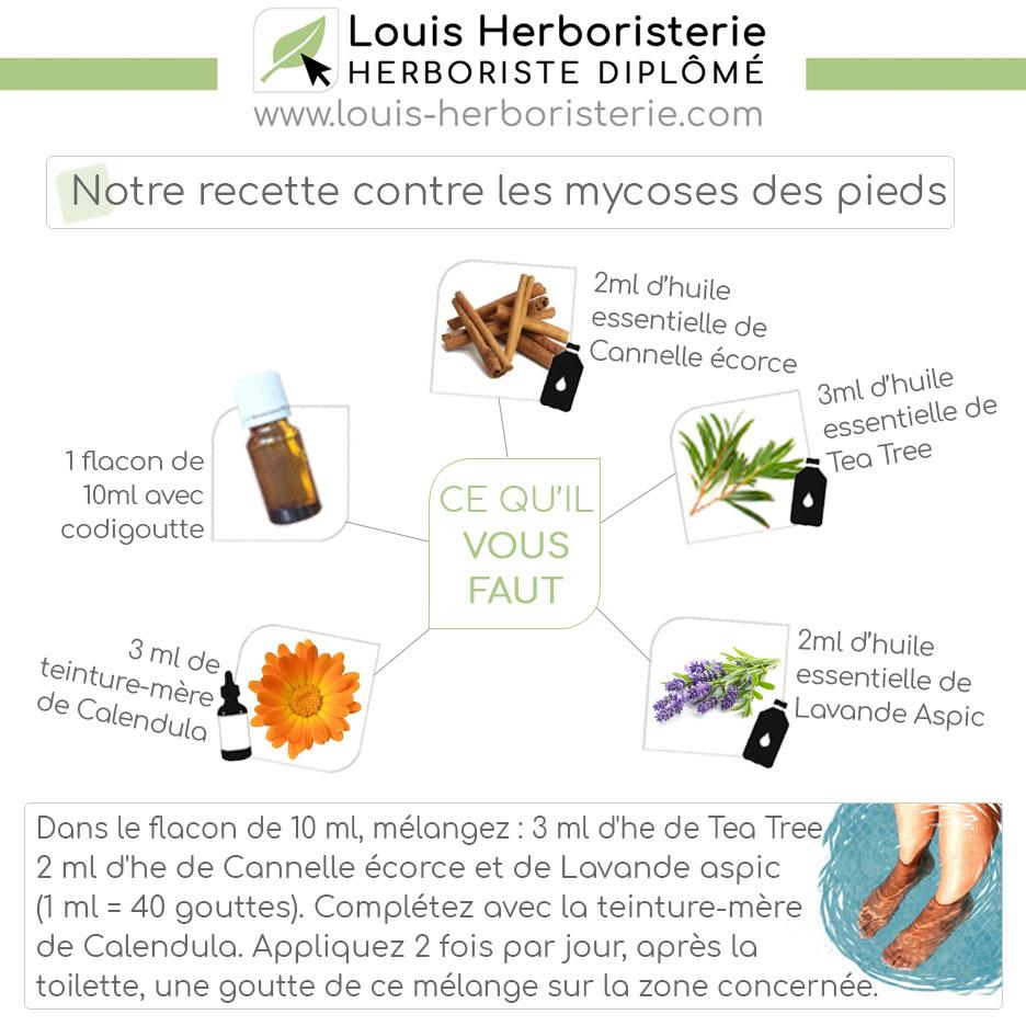 Réalisez vous-même cette recette afin d'éliminer durablement vos mycoses plantaires !